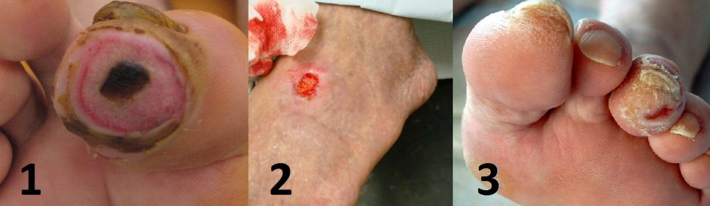 Fig 2- Ischaemic ulcers: well defined edges in peripheral parts of limbs