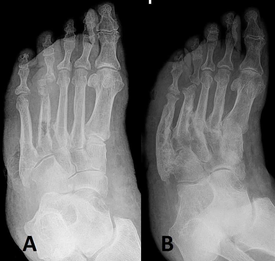 Fig 4 - Charcot foot: (A) initial arthropathy changes; and (B) progressive deformity over 2 years