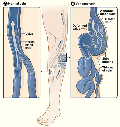 Fig 1 - Varicose veins develop from valvular incompetence, resulting in dilation of the superficial venous system.