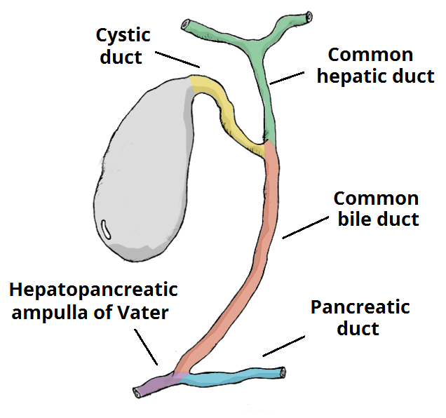 Fig 1 - The biliary tree. A gallstone in the ampulla of Vater is a common cause of acute pancreatitis.
