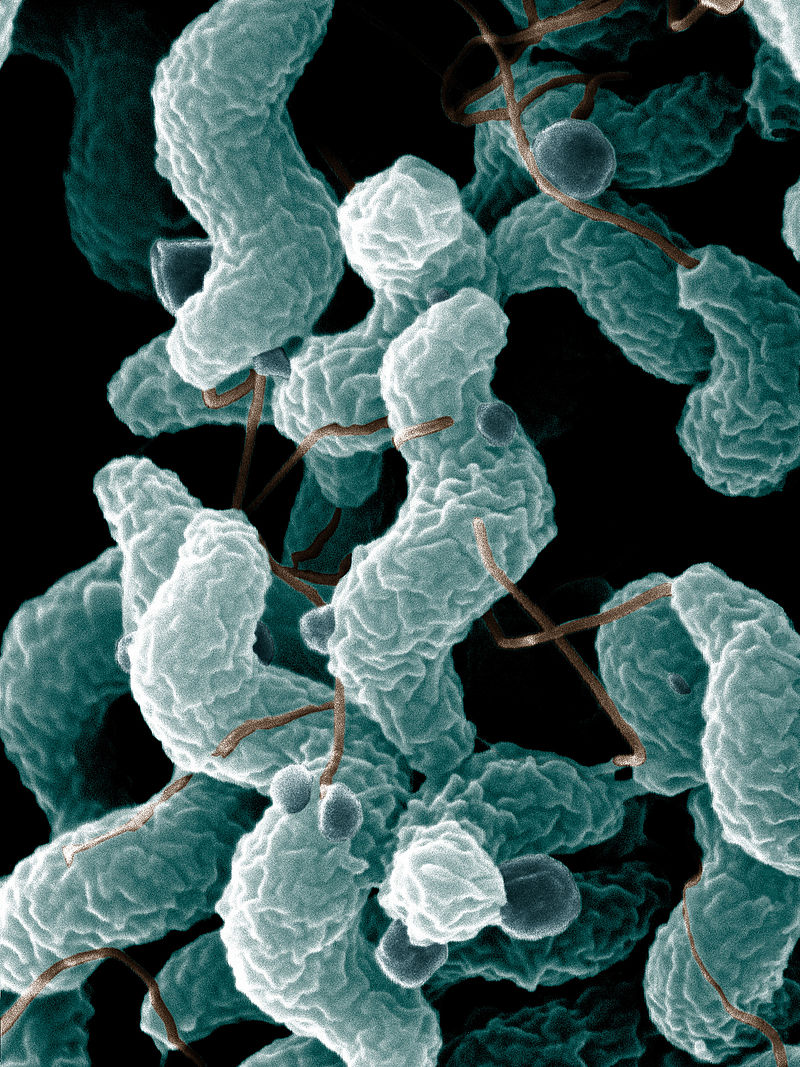 Fig 2 - Scanning electron micrograph image of Campylobacter jejuni, showing its characteristic spiral shape.