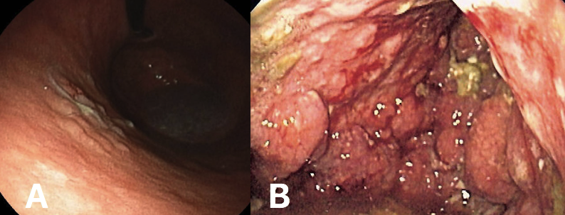 Fig. 3 - (A) Early stage gastric cancer (B) Linitis Plastica, whereby the malignancy has invaded most of the stomach and produced a 'leather-bottle' type appearance