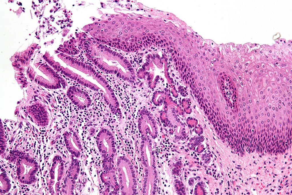 Fig 1 - Barrett's oesophagus at the GOJ, showing gastric acinar metaplasia on the left and oesophageal stratified squamous epithelium on the right