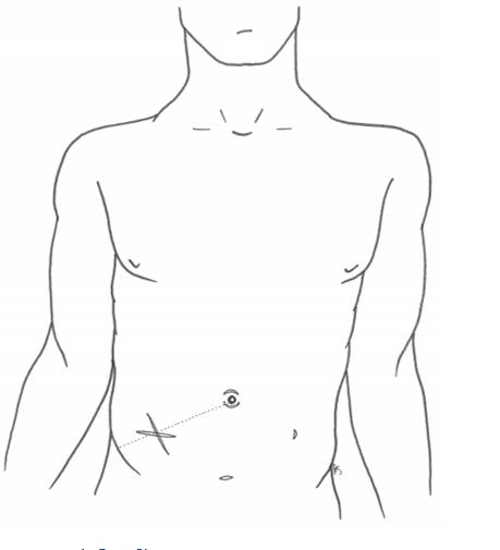 abdominal incisions - lanz - kocher - midline
