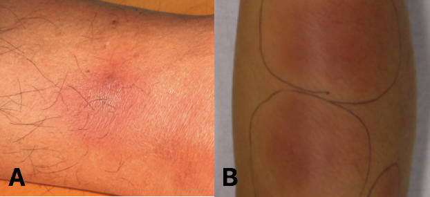 Fig 2 - Erythema nodosum is a relatively common extra-intestinal feature of ulcerative colitis.