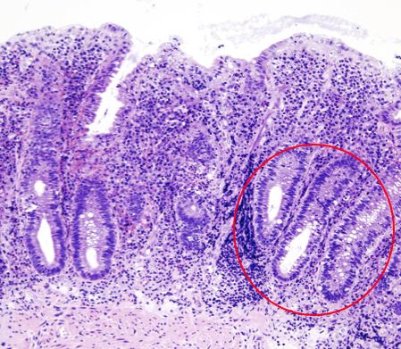 Fig. 1 – Histology of Bowel Segment in UC, showing non-granulomatous inflammation with crypt abscess (circled) formation