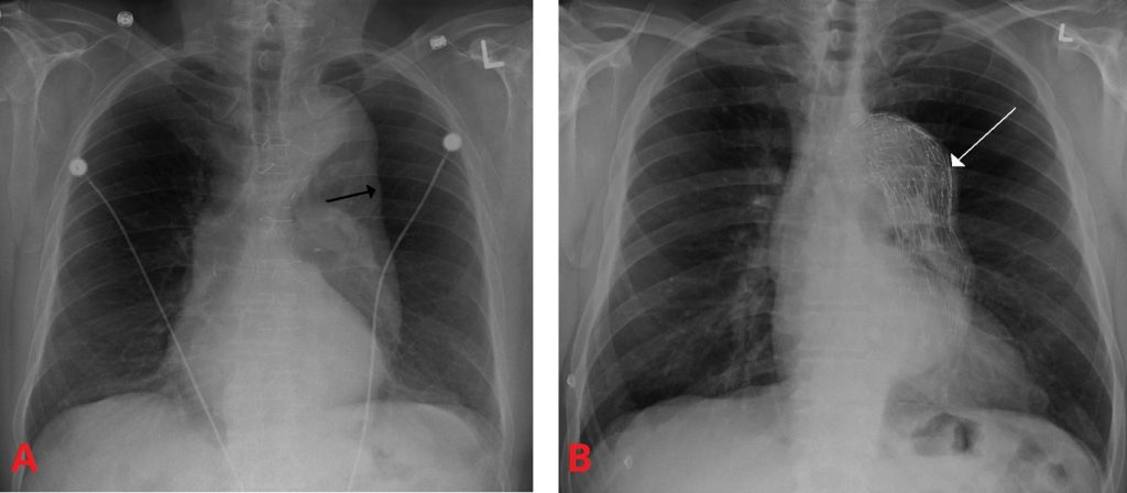 Fig 2 - X-ray of a thoracic aortic aneurysm. A - Arrow marks the lateral border of the aorta. B - after endovascular repair.