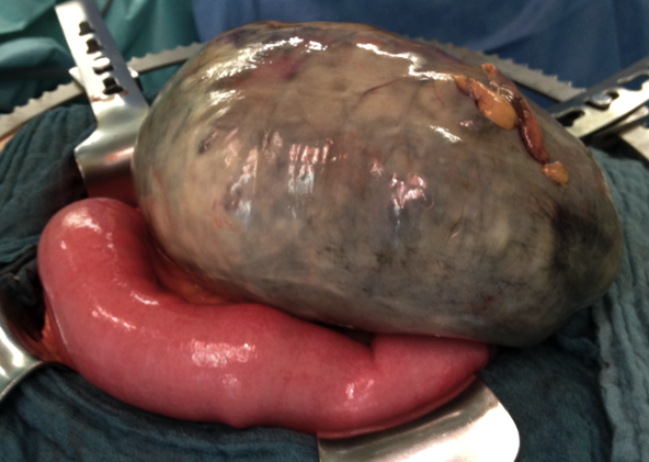 Fig. 1 - Sigmoid volvulus, showing severely ischaemic bowel requiring surgical resection
