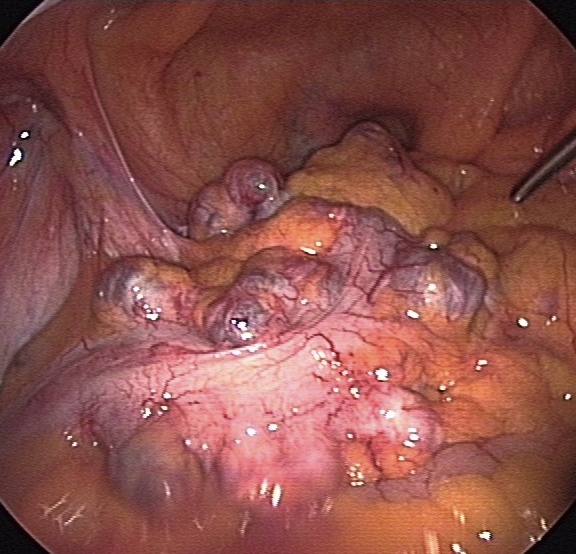 Fig. 1 - Laparoscopic view of diverticula in the sigmoid colon