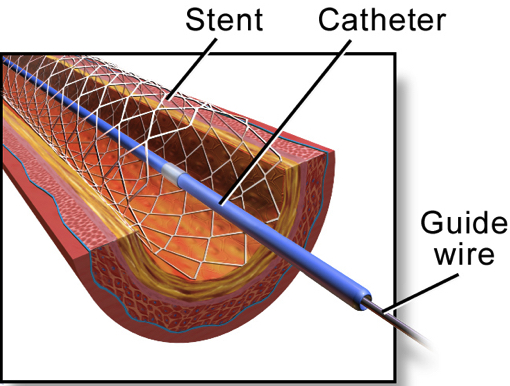 Fig. 1 - The stenting of an artery during endovascular repair.