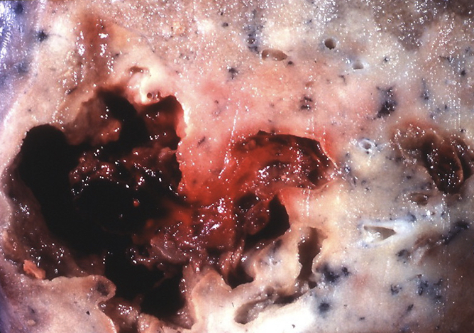 Fig 3 - Remnant of a drained pulmonary abscess at post-mortem