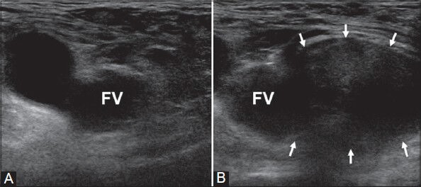 Fig 2 - Ultrasound image demonstrating the typical right femoral hernia emerging medial to a compressed femoral vein (FV). (A) was taken at rest and (B) during Valsalva