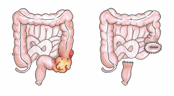 The before and after of the bowel following a Hartmann's Procedure