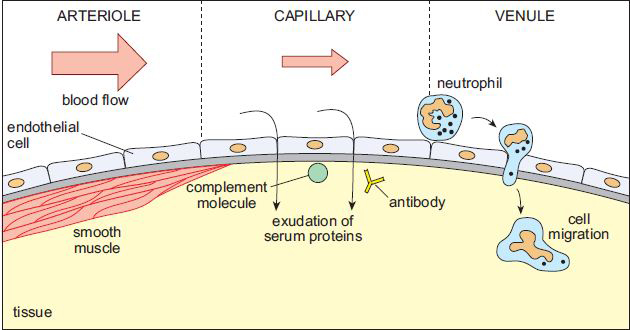 Fig 2 - The features of acute inflammation; vessel vasodilation, exudate formation and neutrophil migration.