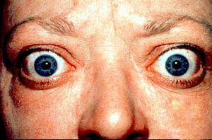 Fig 2 - Proptosis and lid retraction in thyroid eye disease.