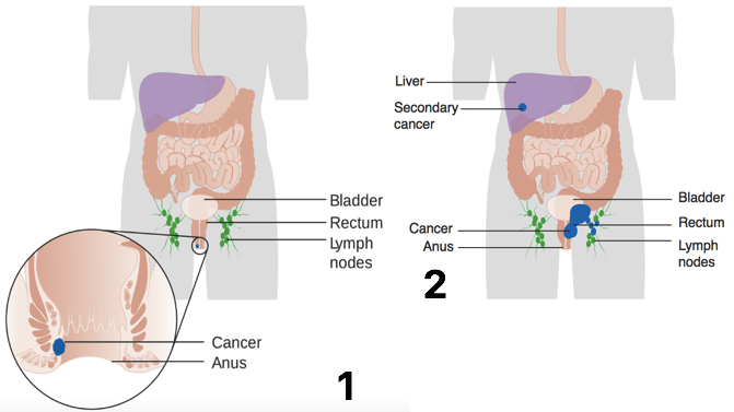 Fig. 2 - Diagram showing the (1) Stage 1 and (2) Stage 4 anal cancer metastasis