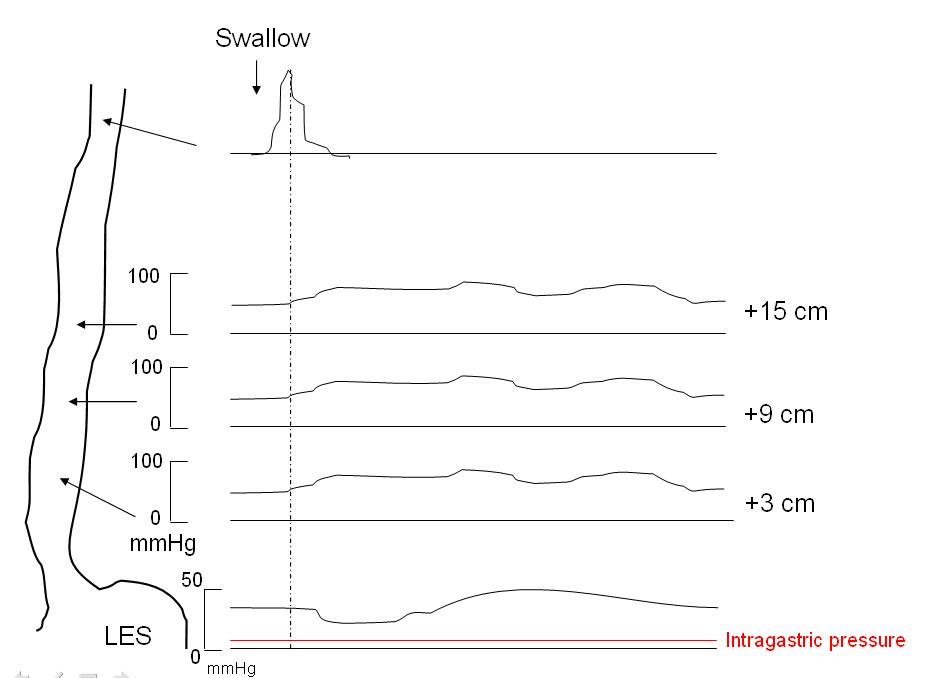 Fig. 2 - Manometry in achalasia, showing demonstrating aperistaltic contractions, increased intraesophageal pressure and failure of relaxation of the lower esophageal sphincter.