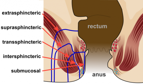 Fig 3 - Diagram highlighting the positions and nomenclature for anorectal fistulae