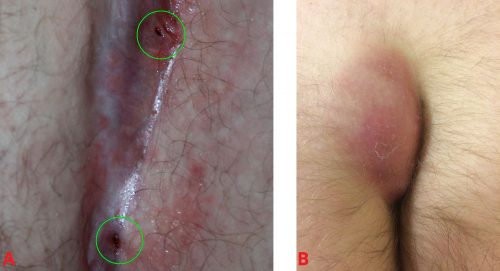 Fig 2 - A) Openings to two pilonidal sinuses within the gluteal cleft. B) A pilonidal abscess.