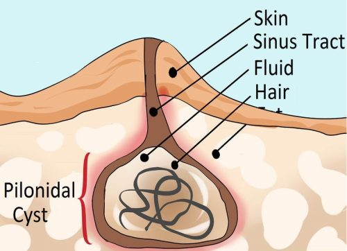 Fig 1 - A pilonidal cyst and sinus tract.