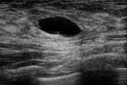 Recurring complex breast cyst
