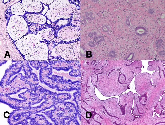 Papilloma cancer of the breast