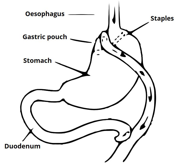 Consent Gastric Bypass Teachmesurgery