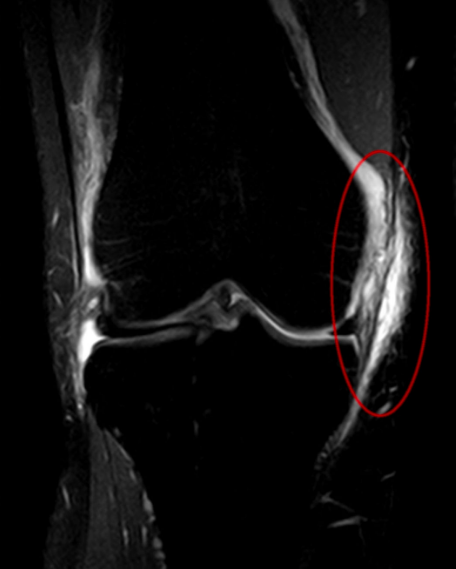 medial collateral ligament tear grading management
