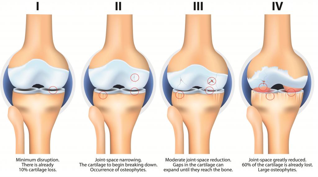 Osteoarthritis Pathophysiology Clinical Features Teachmesurgery