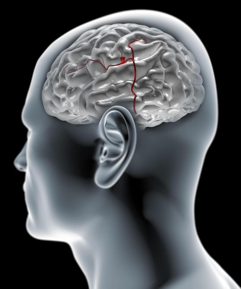brain aneurysm signs and symptoms