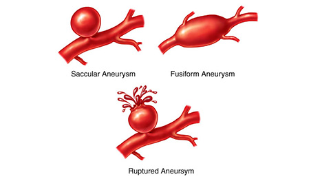 research paper brain aneurysm In this paper we present how nanoelectronics should advance medicine robotics and mechatronics research laboratory nanorobot for brain aneurysm.