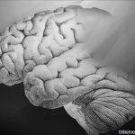 child brain aneurysm