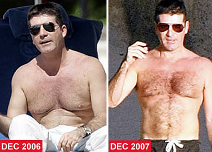 gyno nipples steroids