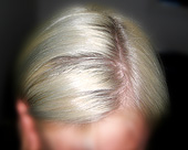 Partleft