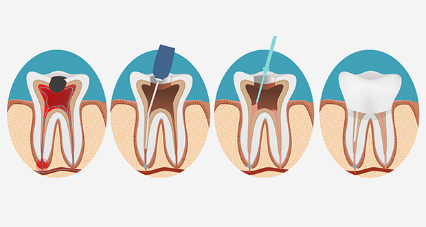 Are Root Canals a Cause of Cancer?