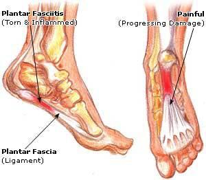 Plantar-fascia-picture