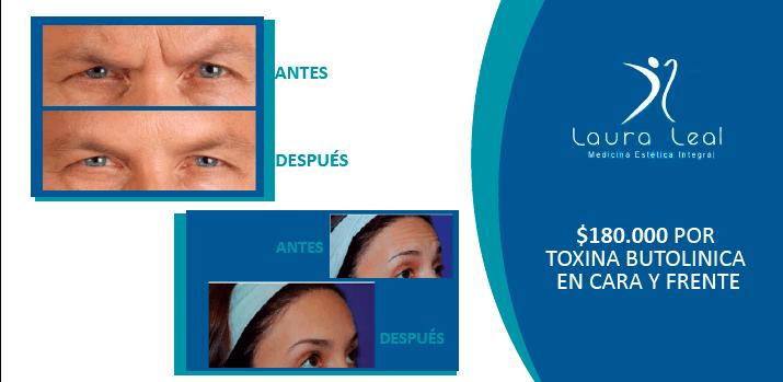 Toxinas Botulinicas en Cara y Frente por $ 180.000