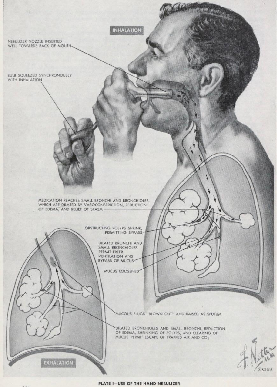 Hand Bulb Nebulizer