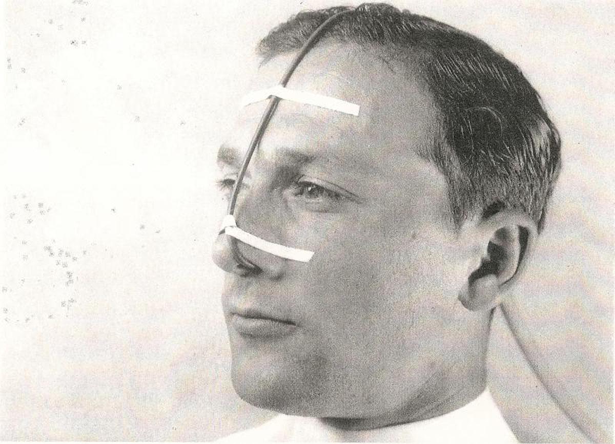 1920s Rubber Oxygen Catheter