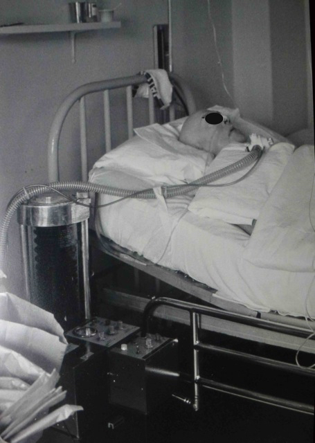 Air-Shields Ventilator in ICU