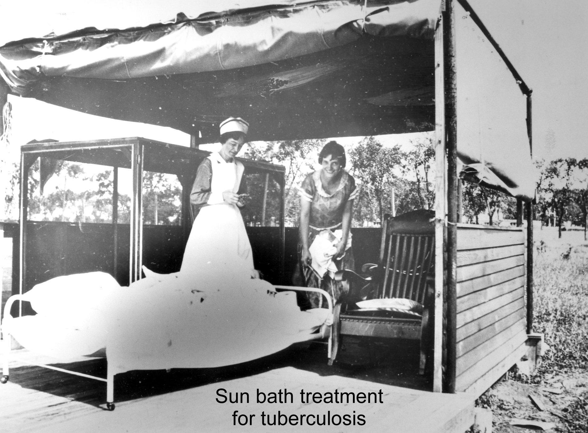 Sun Bath for TB