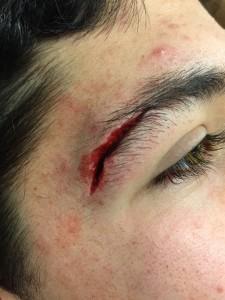 baseball eye