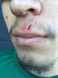 baseball lip
