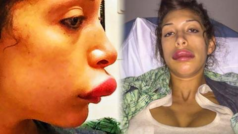 Another Top 10 Celebrities With Terrible Plastic Surgery