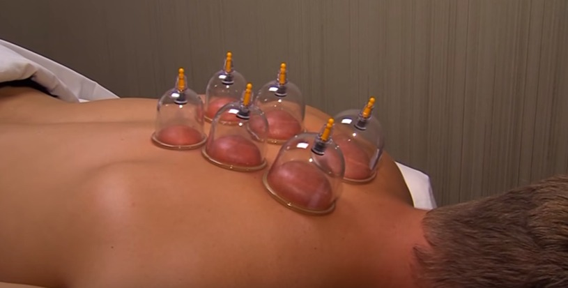 "Sean Tries Out ""Cupping"" Like the Olympians"