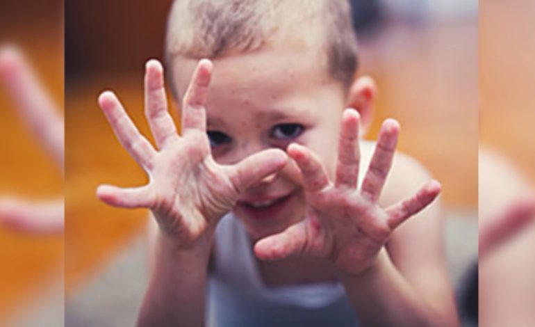 Hand, Foot, And Mouth Disease On The Rise