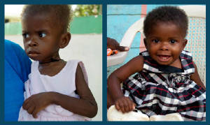 Treating Childhood Malnutrition in Haiti