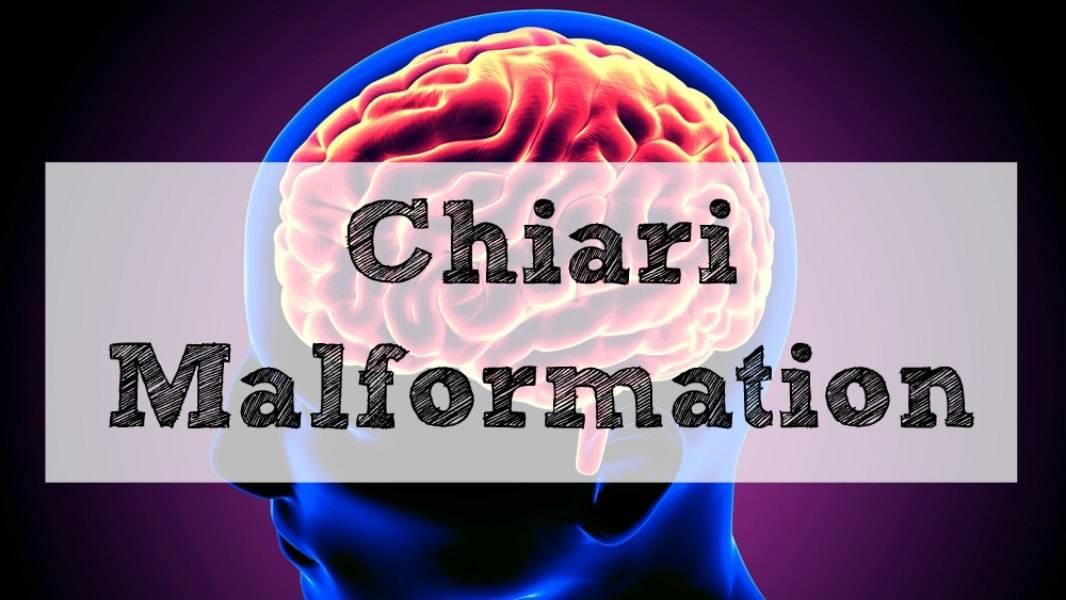 Chiari Malformation, Arnold Chiari