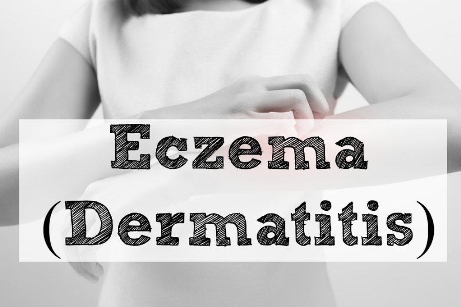 Eczema (Dermatitis)