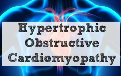 Hypertrophic Obstructive Cardiomyopathy